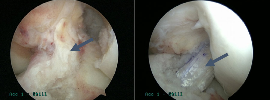 ACL Tear (Left) and ACL Construction (Right)