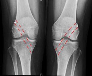 Knee Post Op Xrays